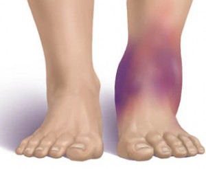 Ankle Injuries and Disorders