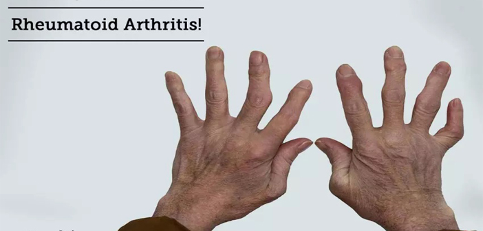 Rheumatoid Arthritis Causes, Symptoms, Signs